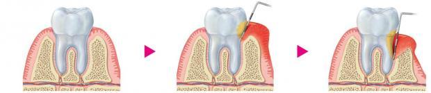 Preventing oral biofilm-induced periodontal disease