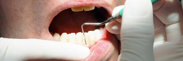 Celebrating the first European Day of Periodontology